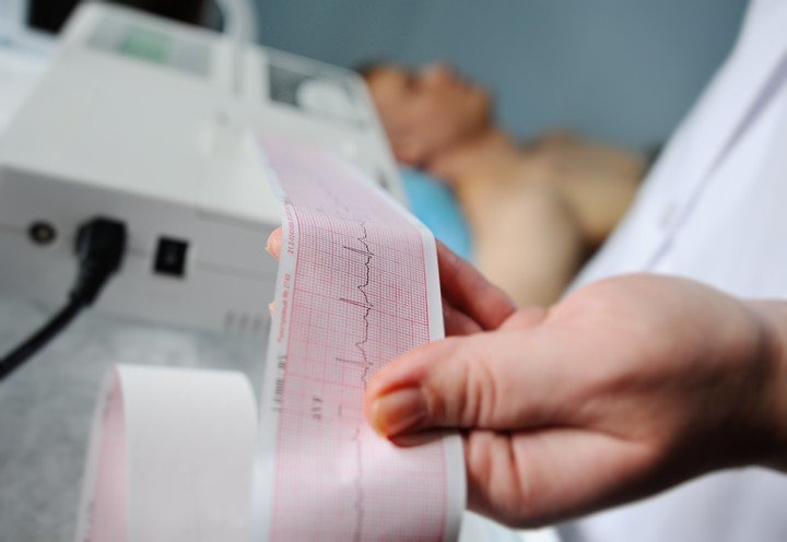 Electrocardiogram.  One of the studies revealing a heart attack.  Photo / Shutterstock.